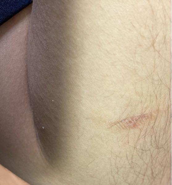 子猫に少し痛い甘噛みをされたのですが、不思議な傷?があります。なんかの病気でしょうか。