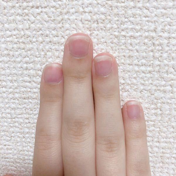 爪を綺麗にしたいです 写真の通り私の爪は男爪で、決して綺麗な爪ではありません。 爪についての悩みが幾つかあるので、どれがひとつでもお答えいただけると嬉しいです。 ・写真の通り、親指・人差し指・...