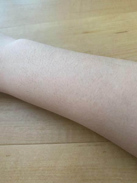 閲覧注意です。 自分は腕の毛穴に悩んでいます。 無駄毛に悩んでいるのはもちろんのこと、剃っても残ってしまう毛穴にとても悩まされています。 毛穴は遺伝なのでしょうか? 友達はまず毛がとても薄かったり、剃っても毛穴が全く目立たなかったりと自分とは全然違います。 私は中学生なのですが塾に通っています。 塾の子はみんな半袖を着て綺麗な腕を出しているのに、私は毛穴が気になりだすことができないです。 暑い中自分は長袖で本当に泣きたくなります。 みんなが羨ましいです。 学校では長袖の子が多いのであまり気にならないのですが、塾だと気になります。 写真が私の腕です。 写真は毛を剃っていないのですが、剃っていてもそうでなくてもかなり目立ちます。 少しでもマシにする方法があれば教えて頂きたいです。 また、脱毛で毛穴がとじていくとききました。 中学生なので本格的に脱毛はできませんが何回ぐらいで変わるのでしょうか。 ご回答宜しくお願いします。