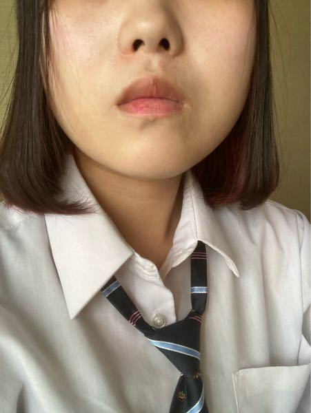 整形をしたいです。 鼻と輪郭をやりたいです。 鼻⇒団子鼻を直して鼻筋が欲しい 輪郭⇒顔が丸いので太ってるように見える 顎を尖らせたい 骨削り以外でありますか?? 注射などでも大丈夫...