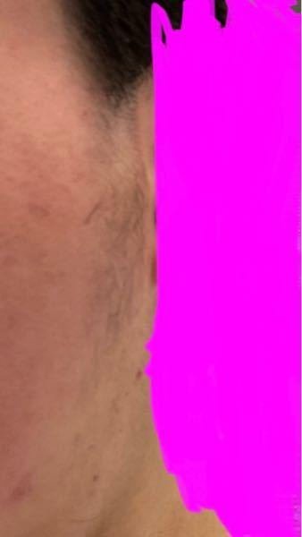 今日髪を切ったら何故か顔の横に毛が生えていました。髪の横の刈り上げを頼んだ時に剃られたからなのか、それとも髪で隠れてたのが出てきただけで元々生えてたんでしょうか?また、どのように処理すればいいでしょう ?普通生えてきませんか?