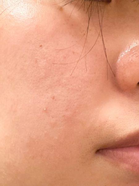 肌が汚いことが悩みです。 ちょっとしたシミのようなものやポツポツとした小さいニキビができます。 マスク荒れもあると思います。 特に小鼻の黒ずみが目立ちます。 おすすめの洗顔や化粧水等はありますか? 多少値が張っても構いませんので、効果のあるものを購入したいです。