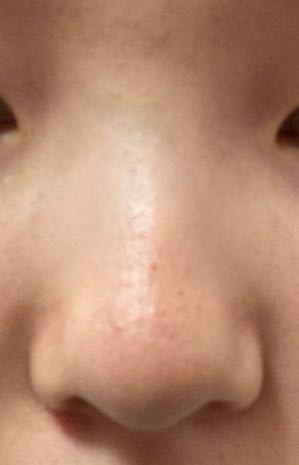鼻筋が全くなくてコンプレックスです。 メイクで鼻筋を書こうとしてもどこに書けばいいのか分からなくて全く上手くできません。 こんな鼻でも綺麗にかける方法とありますか? 出来れば、上手くかけるおすすめのコスメとかも教えて欲しいです。お願いします。 汚い画像ですみません。