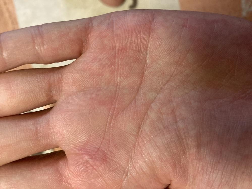 手相に詳しい方お願いします。 左手の手相です。 中指と薬指の下あたり斜め状に目の様なシワがあるのですが、これはどう言った意味の手相なのか教えて下さい。 去年の冬頃は、もう少し目の中がハッキリしていたのですが、少しぼんやりしてきた様な気がします。 宜しくお願いします。