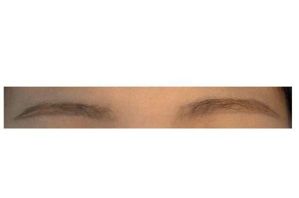 眉毛の左右非対称が気になります。左の眉が細くて右は太いです。形も違います。どちらの眉に合わせたらいいかも分かりません。 書き方教えてください。お願いします。 この写真に線とか書いていただけるとありがたいです。