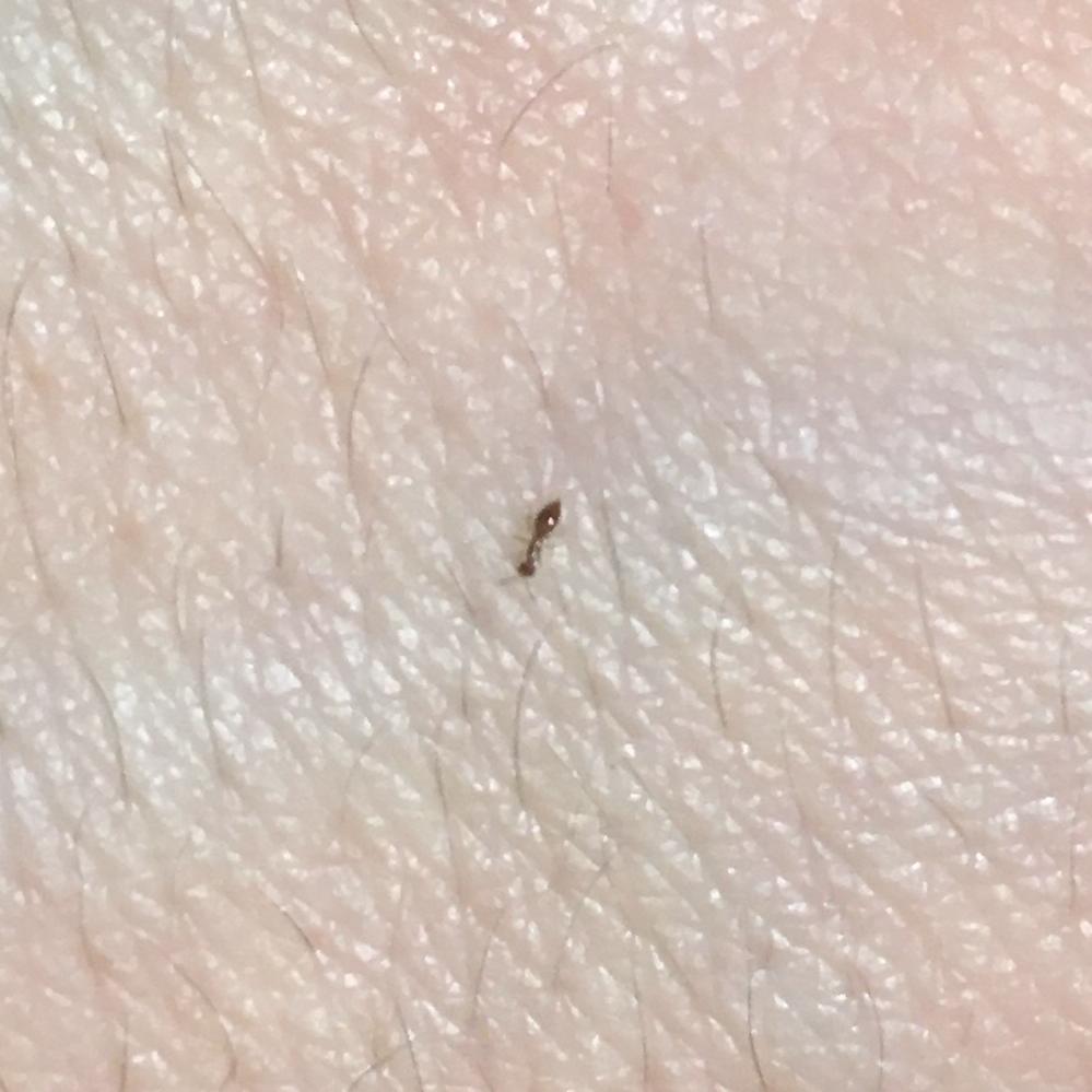 ベッドに毎日3匹ほどの小さな蟻が出ます。 全長は1.4~1.8mm、体色は薄赤茶色(写真では濃い色に写っていますが実際は薄い色)です。 蟻の種類を含め、駆除方法をご存じの方はいらっしゃらないで...