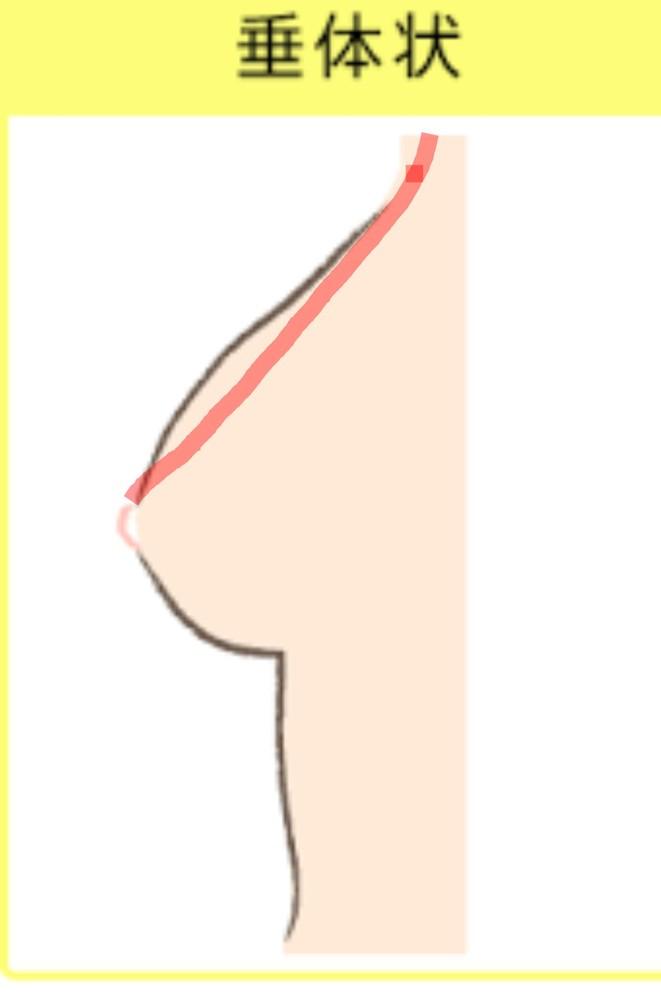 胸の形が悪いです…。どうすれば形が良くなりますか? ワイヤー入りをつけると横が痛かったり、跡がつくせいで中学時代からずっとスポーツブラを愛用していました。 形なんて気にもしていなかったのですが、...