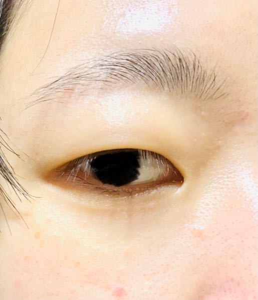 私の目は重い一重です。 まつげの生え際も見えないので、ビューラーをしても全く効果なしで、むしろ違和感しかないです。 画像が実際の目なのですが(黒目は塗りつぶしてます)、整形(眉下リフトなど)で一重のまま、まつげの生え際を見えるようにする事は可能なのでしょうか? また、この目のままでまつげパーマをするとどうなるのでしょうか?