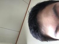 おでこ広いものなんですけど、ものなんですけど、こういう髪型の方がいいと思いますか? それとも長くした方がいいですか?