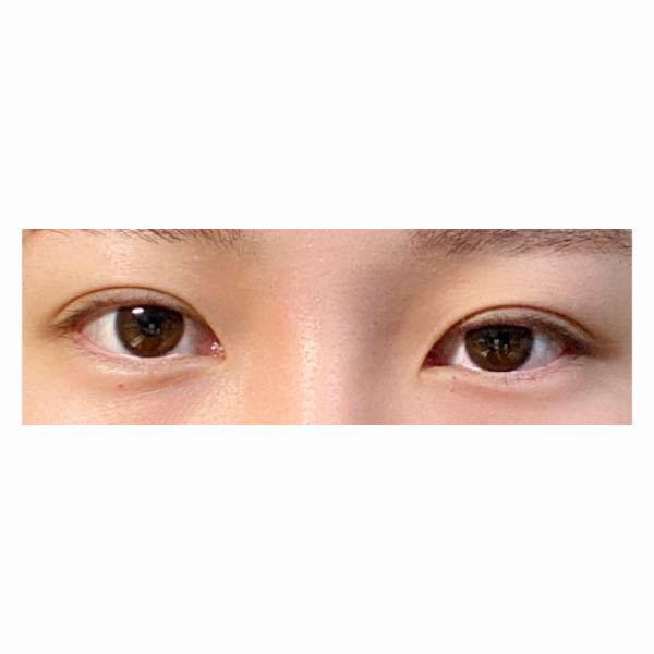 整形についての質問です。 すっぴんの目元ですいませんm(_ _)m 左右の目の開き具合や二重幅の左右差が嫌で、二重整形(埋没)をしようと考えているのですが私のこの目は二重整形で左右対称もしくは非対称差が少しはマシになるでしょうか?最近ではYouTuberのまあたそちゃんがやっていた、眉下切開も気になっています。 無知で申し訳ないのですが、お答えいただければ幸いです。よろしくお願い致します。