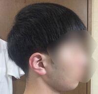 これは絶壁頭ですか?頭の形変ですか?