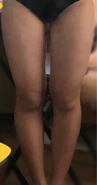 私の脚ってO脚なのでしょうか…それともXO脚なのでしょうか? (><。)教えて欲しいです また自分の短足・足の太さは重々承知していますので短足・足の太さに関するコメントは控えて頂きたいです。