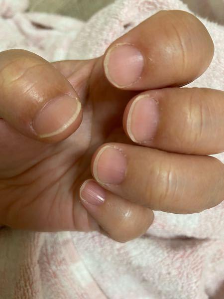 この爪でネイルサロンに行ったら笑われますか? 施術してもらえますか? 爪の形がコンプレックスでオシャレできません(;_;)