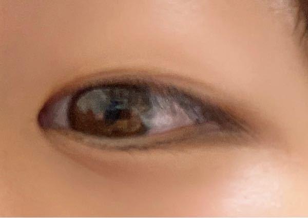 この目どう思いますか? 二重になりたいです。