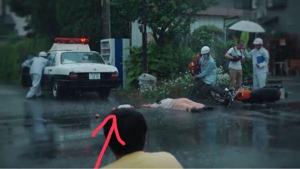 写真を見てください。彼女は綺麗だった3話の交通事故、これ腕が切断されてしまったってことでしょうか?