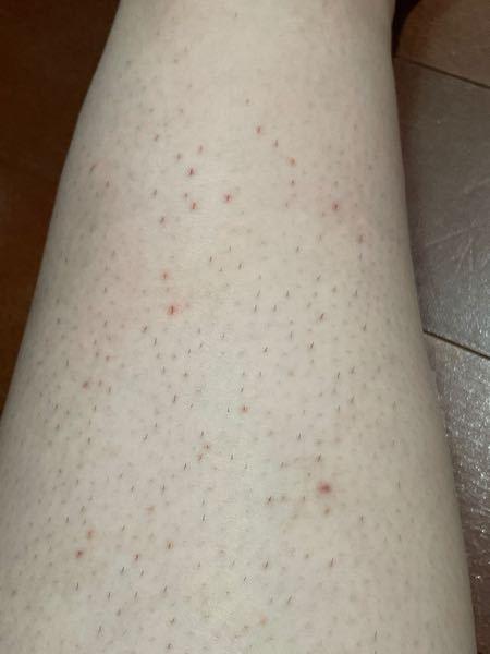 ⚠️ 閲覧注意 ⚠️ カミソリ負けした脛が写ってます 肌が弱いのか、カミソリですねの毛を剃っていると痛いです 毎日剃っていると痛すぎて剃れません。 毛の生え際?が赤くなり、酷い時は血が出ます。 カミソリはlntuition敏感肌用を使用。 脱毛へは行きたいのですが、 自分がデブなので恥ずかしく行けないなぁと思っています。。。 脱毛クリーム は試したことありません。 どうしたらいいんでしょうか、見た目も汚いし 痒いし痛い。脱毛へ行くべきでしょうか… デブでも大丈夫なのでしょうか… 自分の羞恥があるだけで普通なんでしょうか……