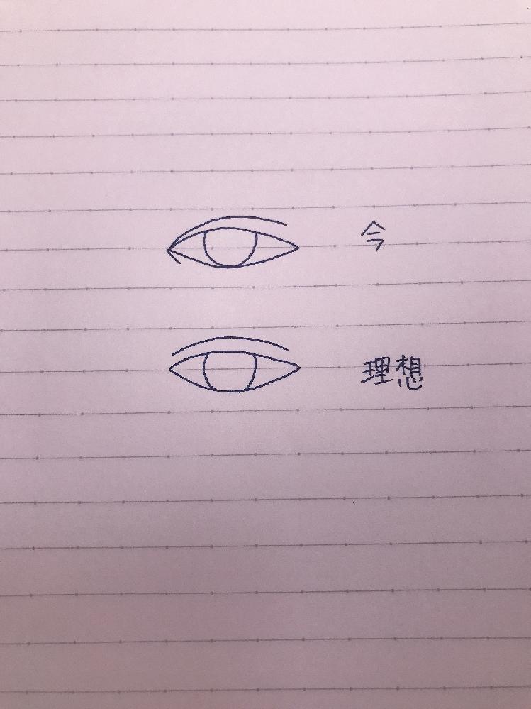 蒙古襞と繋がっている末広二重を繋がっていない並行二重にするにはどうすればいいですか?