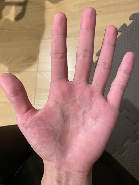左手の生命線がとても短いのですが、私は早死にするのでしょうか。