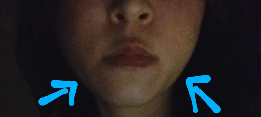 この頬の部分のたるみに凄く悩んでいます。 ハイフなどでは全然改善しないのでミニリフトしかないかな?と思っています。 客観的に見てこの頬の部分どう感じられますか??