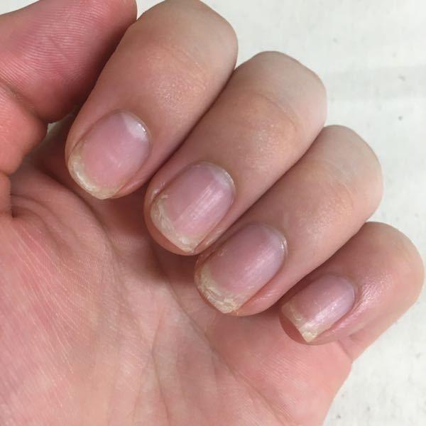 爪が非常に汚いです。特に爪が層になってめくれてきてしまいます。また、ハイポニキウムも伸ばしたいです。 定期的にヘパリン類似物質で保湿をしていますし、洗い物の際にもゴム手袋を使用しているのですが、...