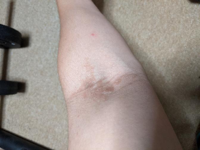 19の男です。最近、腕の間接辺りにこの様な痣?汗疹?のような変色の症状が見られます。画像は左腕ですが、右腕にも軽度で同じような症状が出ています。痒みや痛みなどは一切なく、触ってみてもブツブツとし...