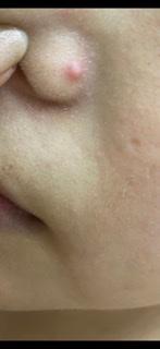 これってにきびですか? 小鼻に大きな出来物が出来ました。 鼻の毛穴が気になって洗顔で重点的に洗ったからでしょうか? 糖質制限もしているのですが関係あるでしょうか? 洗顔の頻度ですが、1日2...