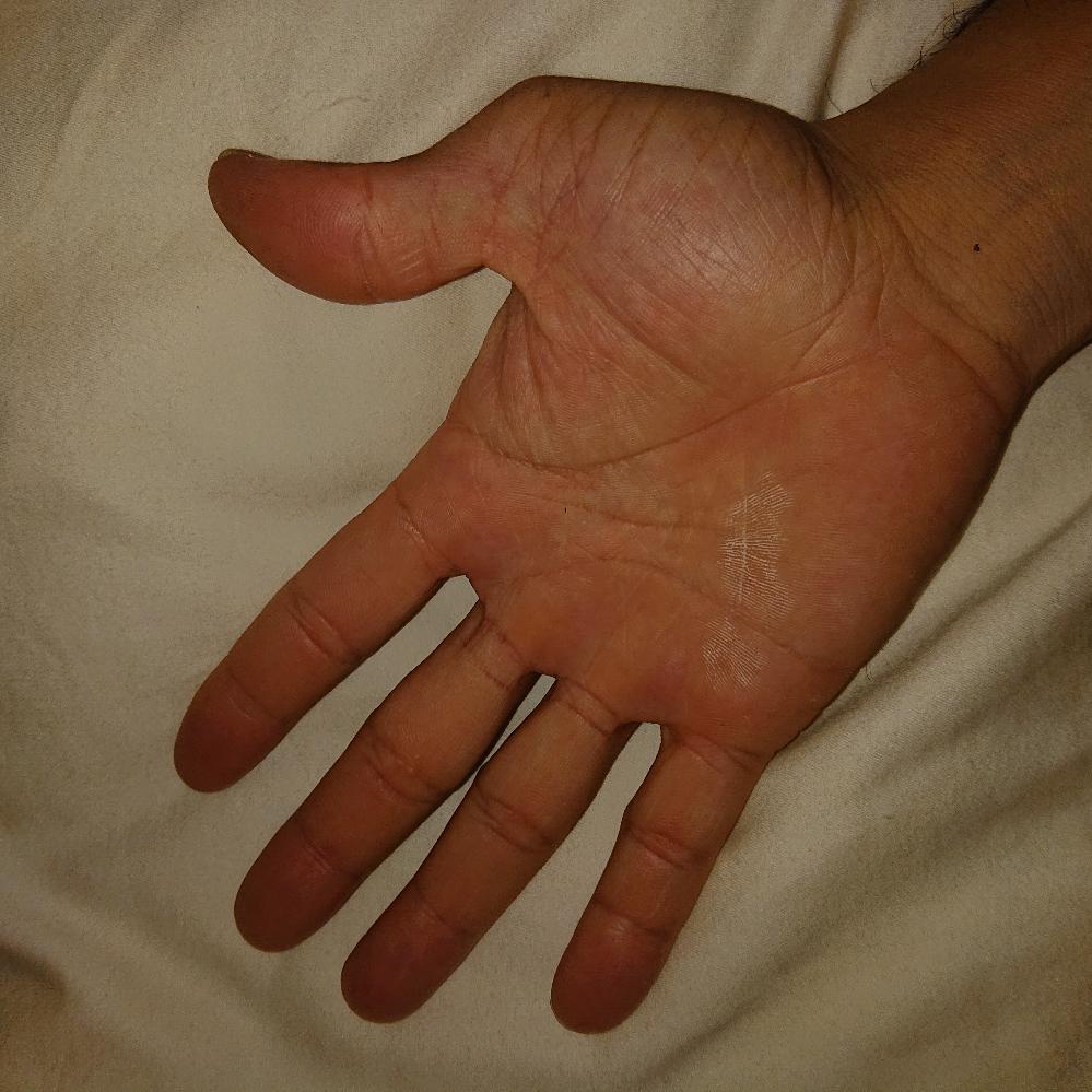 親指の付け根の形が変な気がするのですがこれって普通ですか? 両手とも全く同じように出っ張ってます。 指も真っ直ぐ伸ばしてるつもりでもかなり曲がっていますが何かの病気とか関係してるのでしょうか? 詳