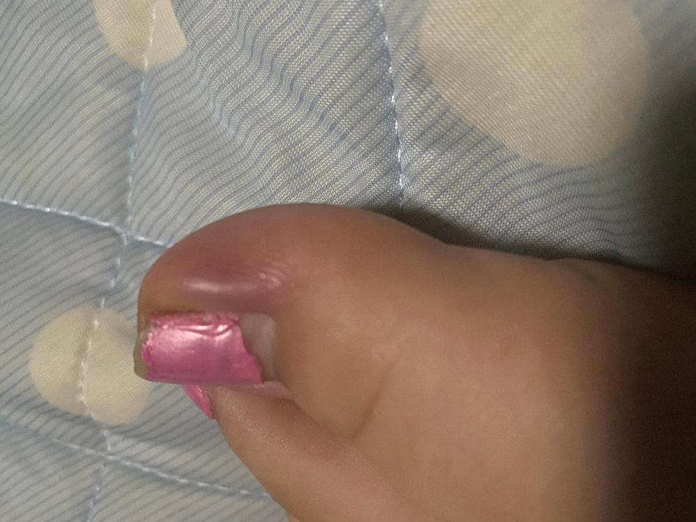 2〜3日前から足の爪の周りに膨らみ?ができ痛いです。何故でしょう?また行くとしたら皮膚科でしょうか?