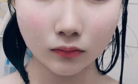 この鼻の横のホウレン線みたいなのを作ってる肉は痩せないととれないのでしょうか??中二です。コンプレックスすぎて給食の時にマスクとれないです、、改善法などはありますか?