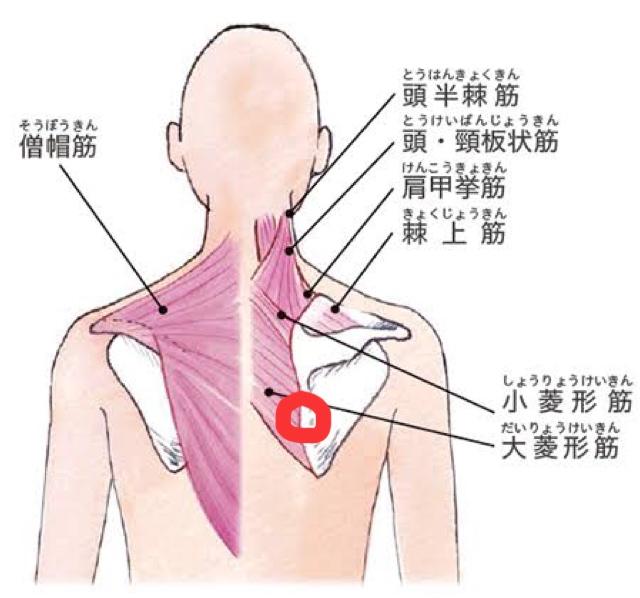 肩甲骨の違和感について 添付した画像の赤丸箇所がたまに痛みます(痛みと言うよりは、違和感のような感じです。プルッみたいな) 手を伸ばすとたまに痛みます。 痛み方はじんわりというよりピンポイント...
