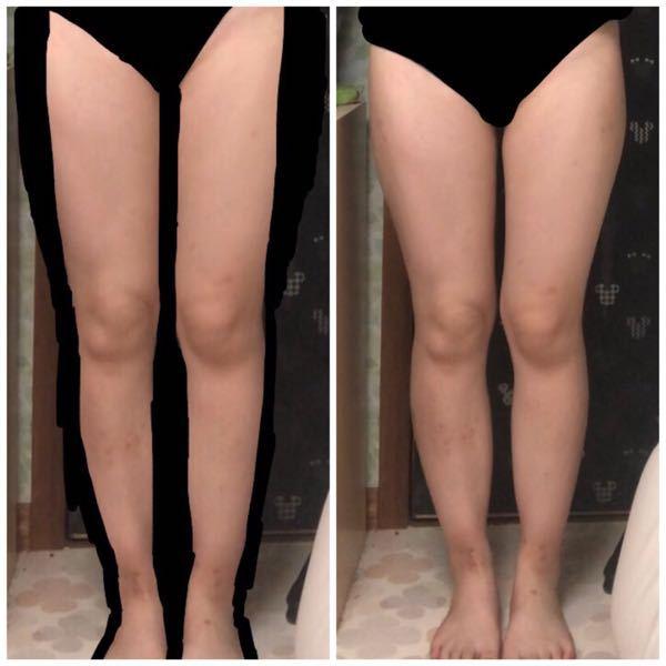 自分の足がほんとに嫌いです。多分ウェーブかなと思うんですけど腰の位置も低いし、太ももは外張り?が凄くてふくらはぎもゴツくて嫌です… 脚やせのダイエットとかも全然効果見えないです。 この足の形、ど...