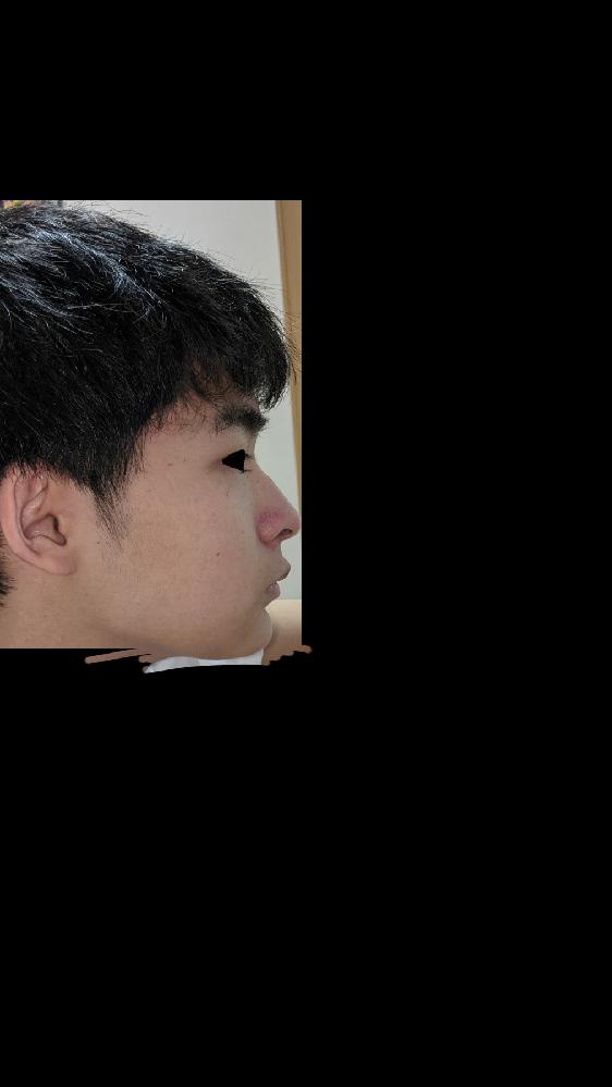 自分は平たい顔族ですか? 鼻筋は通っていますか? 口や顎の形が変ですか? ブスですか? 何歳に見えますか? イケメンに見えない全てを教えてください