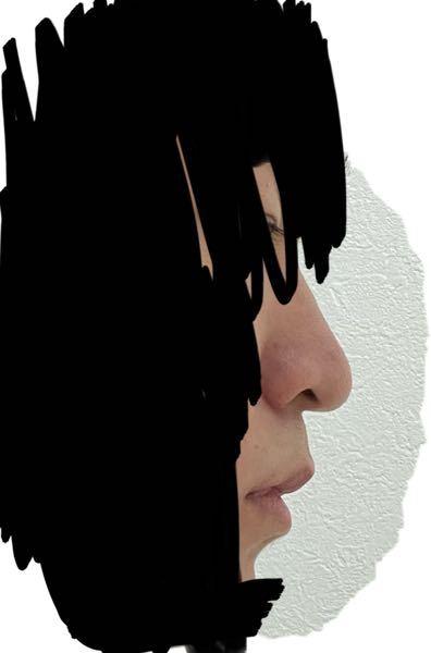 これは魔女鼻ですか? 下向きを治したいのですが出来ればいい方法を教えて欲しいです。