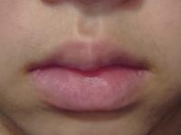 中学生です。 私は写真のようなたらこ唇です。 下が分厚いです。 薄くしたいのですが、どうしたらいいですか?
