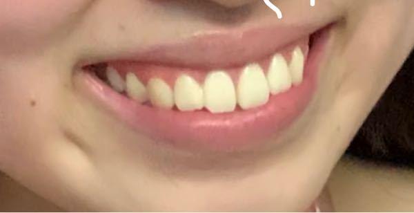 笑うと左は2本、右は三本(犬歯まで)歯が唇にかさなるのですが、やはり少し出過ぎですよね..? 矯正済み(非抜歯 削ったのみ)で、歯科先生からは「歯並びは綺麗になったし、歯もでてない綺麗。これ以上...