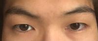 眉毛が非対称で目も非対称です。 眉毛サロンに行けば少しはマシになりますか? お金もかかるので悩んでます。