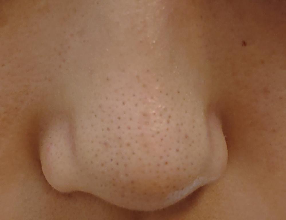毛穴の黒ずみ苦手な方スキップ ︎︎ ︎︎ ︎︎ ︎︎ ︎︎ ︎︎ ︎︎ ︎︎ ︎︎ 中3女子です いちご鼻ほんとにやばいです 酵素洗顔試して見たのですがあまり効果は感じられませんでした。鼻だけの画像しかありませんが頬も毛穴の黒ずみも凄いです。 本当に困ってます、、どうしたら治りますか泣