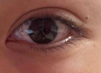 眼瞼下垂の手術を7年ほど前に行いましたが、二重幅を広くしてしまったため、ハム目になっています。あと三角目?っぽいかなとも感じます。 まつ毛の上の脂肪はまた手術をして切らないと取れないのでしょうか? 脂肪が減ればハム目も改善するのかなと素人目線に思ったり、、、  もう切るのは失敗が怖いため切開の再手術はなるべくしたくありません。  アドバイスをいただければと思います。