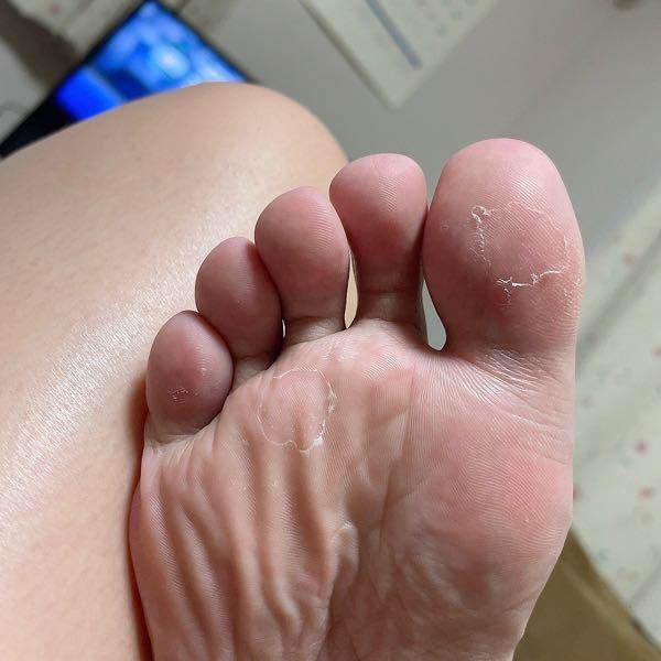【注意!写真あります】 数日後にフットネイルの予約をしているのですが、気付いたら足の裏の皮ふが剥けていました。 これは水虫なのでしょうか…。 痒みはありません。