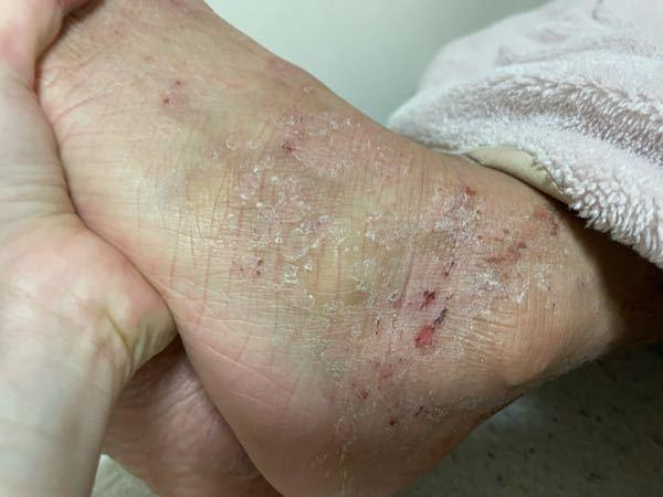 彼氏の足が数日前から皮めくれてかゆいかゆいと言っていて掻いて欲しいと言うのでいつも掻くのですが水虫だった場合触れたら移りますか?