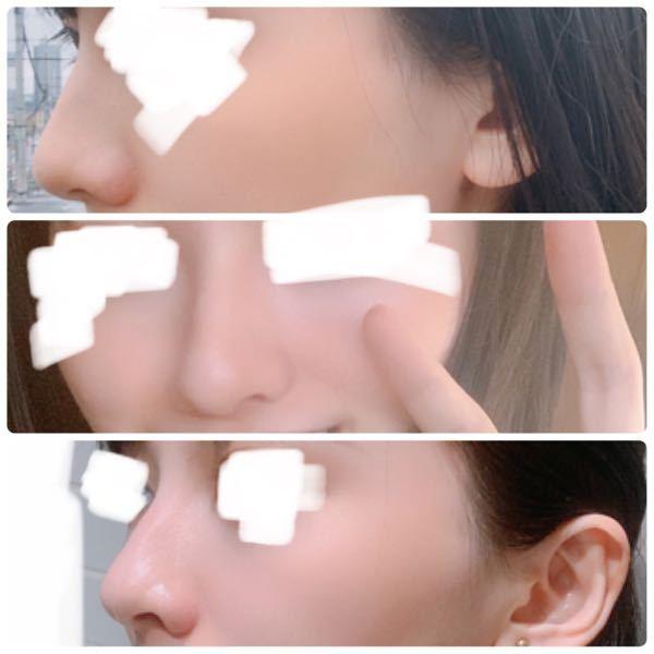 私は鼻整形した方がいいですか?鼻の横の膨らみの縦の幅がもう少し狭ければなぁと思ったことがあり、それともう少しだけ前にとがってて欲しいと思ったことがあります。詳しい方教えてください。
