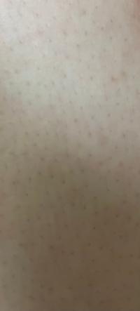 (急募)ムダ毛処理ごの肌について 先日一枚刄のカミソリでムダ毛処理 (しっかりと温めてからやり、やった後は化粧水で保湿しました) したのですが、このようになってしまいました(汚くてごめんなさい)どのようにすれば元に戻りますか?また、今後こうならないためにする方法はありますか。
