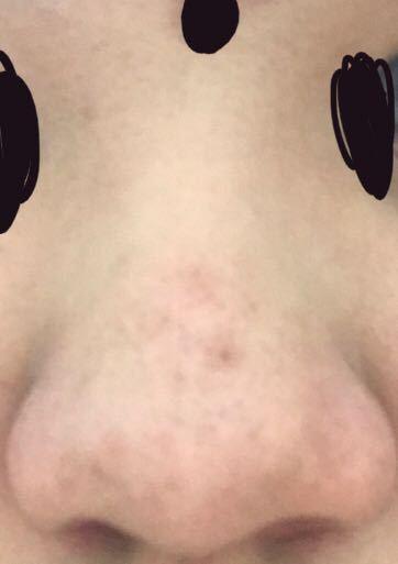 画像の通り鼻がすごい大きいんですけどこの場合なんの施術を選ぶといいですか?