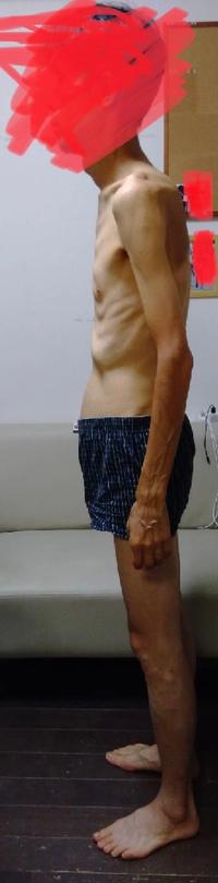 私は骨盤前傾でしょうか、後傾でしょうか。  いつも接骨院で腸骨筋をほぐしてもらいます。  でも骨盤後傾って言われました。  腸骨筋が緊張してたら前傾になりますよね?