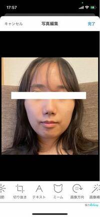 整形についてです。 お見苦しい写真ですみません。輪郭が凸凹で団子鼻なのが悩みです。 この輪郭と鼻の場合、どのような手術が効果的なのでしょうか。
