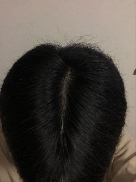 センター分けしたときに頭皮がこんな感じで見えるんですけど、みんなそんなもんですか?