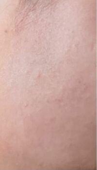 中学1年生で この肌は汚い方ですか? 身長170で思春期に入っています