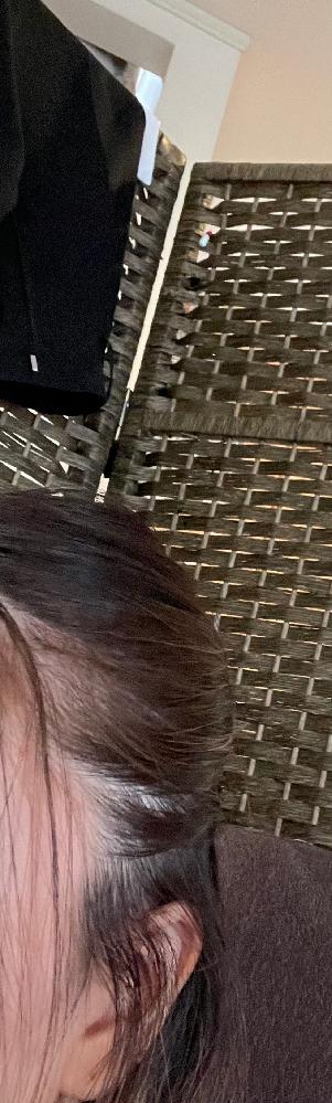 ハーフアップにくくろうと思ったら、髪の毛をかき分けた所が薄くて遠くから見ると、はげてるむではいきませんが少し目立ちます。髪の毛のマスカラとかで隠せば大丈夫ですか?