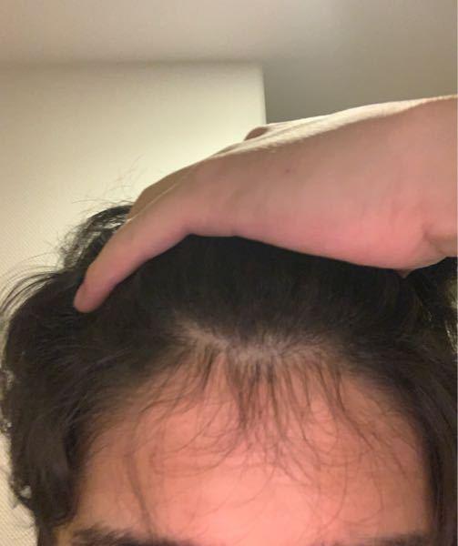 前髪の短い毛が増えてきて禿げたのかと思います これは禿げているのでしょうか?