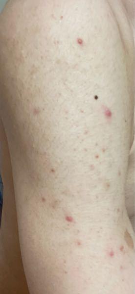 両方の肩から腕にかけて、このようなニキビがあります。 調べたところ、カビやマラセチア?菌などよくわかりません。鮫肌なのもあり、より汚く見えます。 現在は保湿、メラノcc、セナキュアでケアをして...